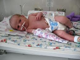 Пневмония у новорожденных. Симптомы. Лечение.