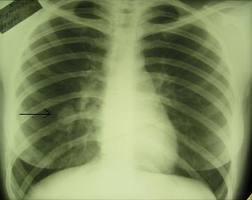 Хирургический метод лечения последствий пневмонии
