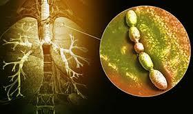 Пневмония и диарея – основные причины смерти грудничков