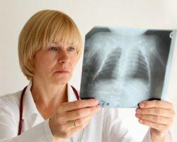 Как может быть выявлена скрытая пневмония у детей?