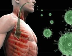 Вирусная пневмония: причины заболевания.