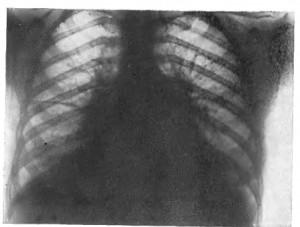 Как возникает застойная пневмония?