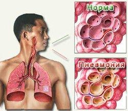 Характерные особенности долевой пневмонии.
