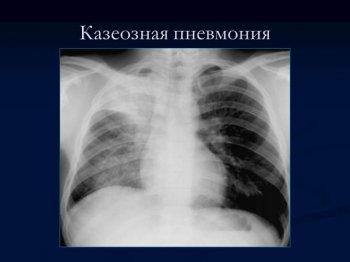 Виды туберкулезной пневмонии.